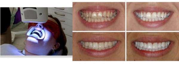 Фото «до» і «після» відбілювання зубів лазером